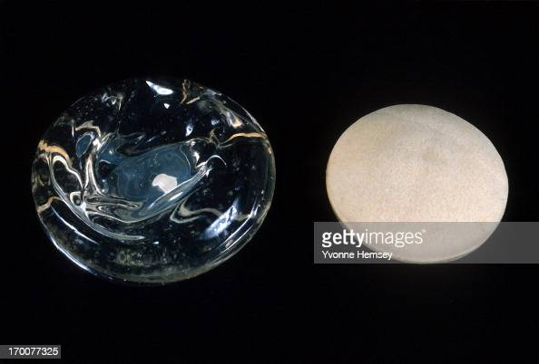 A silicone gel and a polyurethane implant are photographed January 11 1991 in New York City