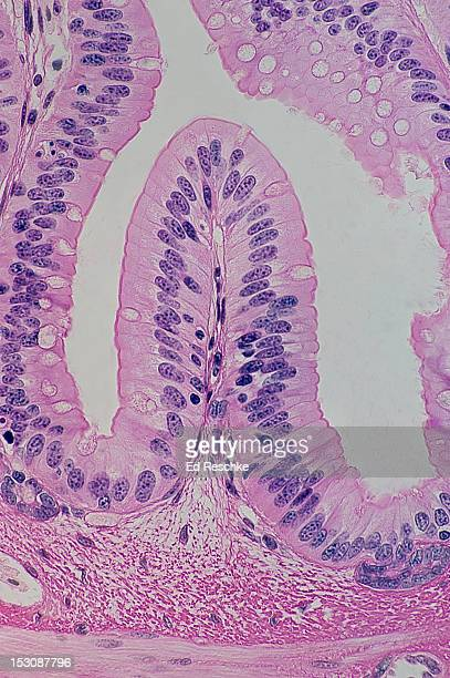 Simple Columnar Epithelium, Goblet Cells & Villus