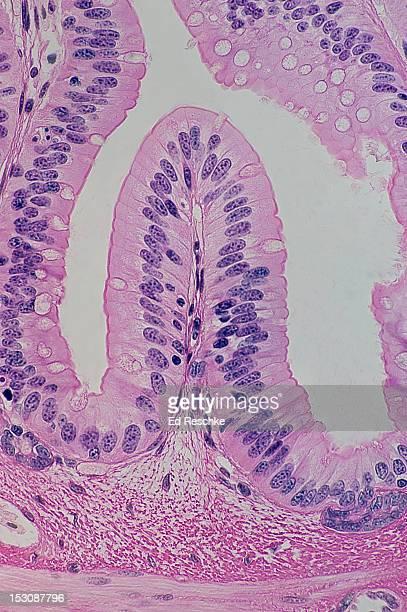 Simple Columnar Epithelium, Goblet Cells & Villus