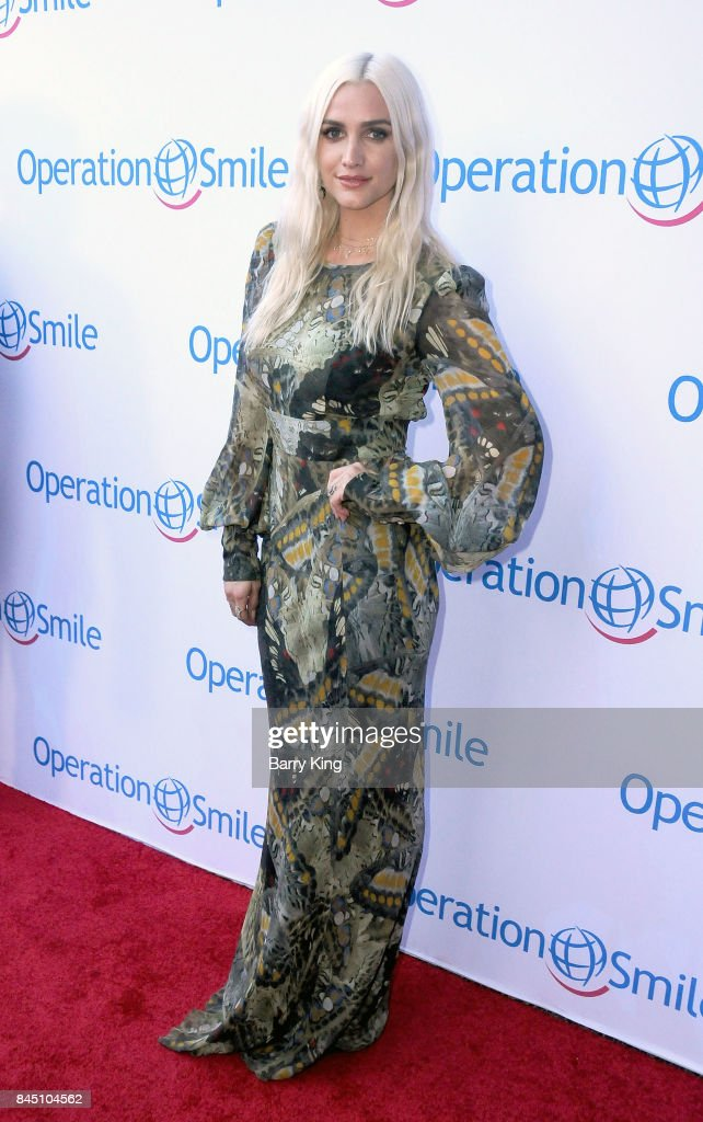 Singer/actress Ashlee Simpson attends the Operation Smile Annual Smile Gala at The Broad Stage on September 9, 2017 in Santa Monica, California.