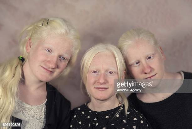 Sisters with albinism Merve Kubra and their cousins Busra Adin pose for a photo in Mardin province of Turkey on December 21 2016 Albinos a rare group...