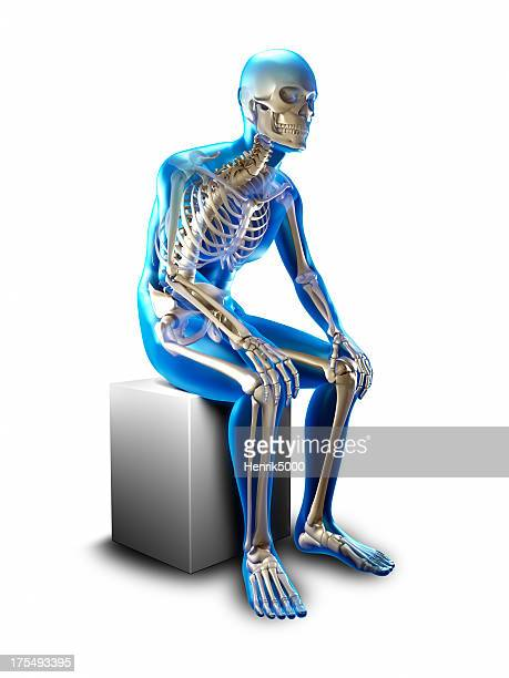 Sitting slumped x-ray  - isolated with clipping path