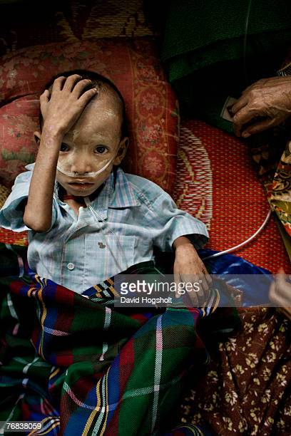 A sixyearold severely malnourished BurmeseKaren boy recovering from TB touching his head July 5 2006 at the Mae Tao Clinic in the BurmaThai border...