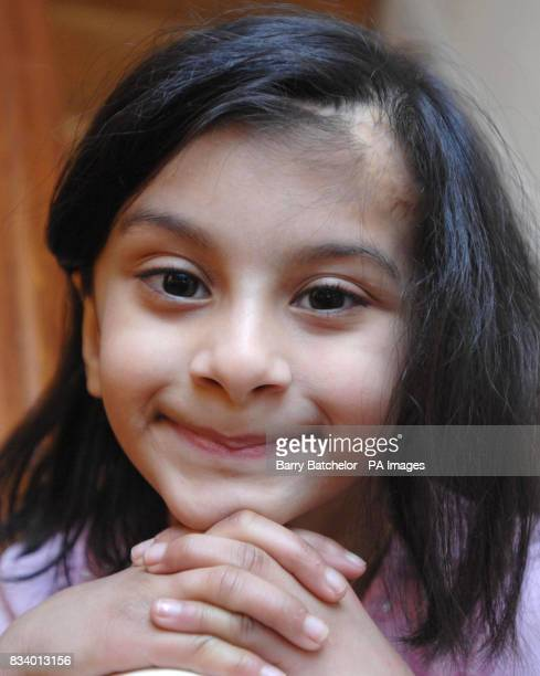 Sixyearold Sidra Afzal at her home in FleurdeLys near Blackwood South Wales after a treatment successfully replaced the skin on her head damaged when...