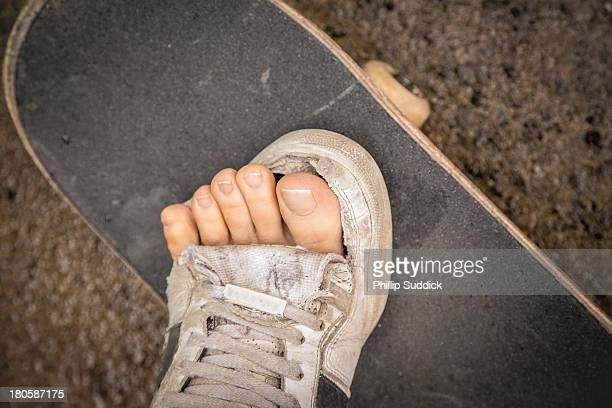 Skateboarders toes sticking out of broken shoe