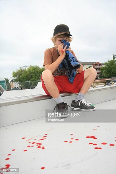 Skateboarding Crash