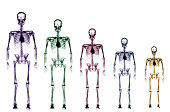 Skeleton growth chart