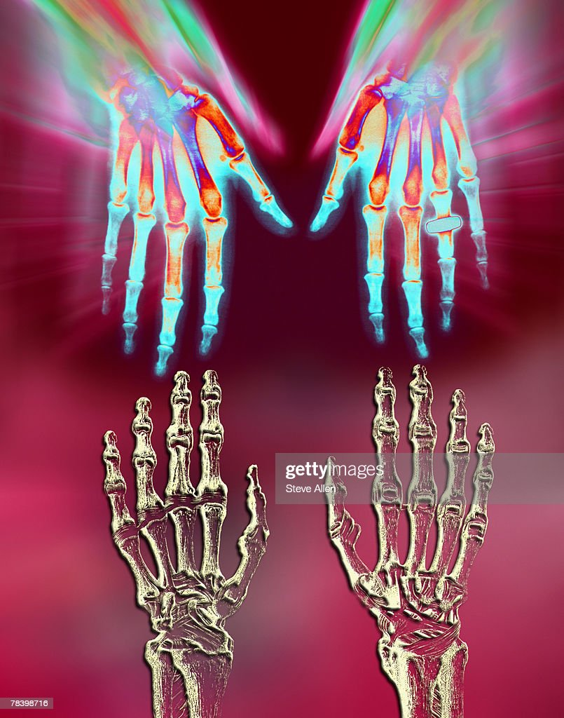 Skeleton hands : Stock Photo