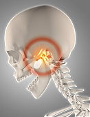 3D render of a skeleton with jawbone highlighted to show pain