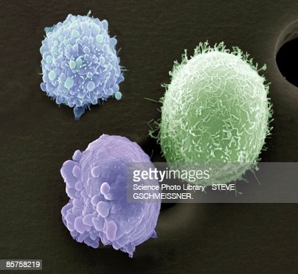 Skin cancer cells, scanning electron microscope (SEM)