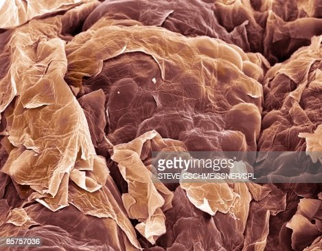 Skin, Colored scanning electron micrograph (SEM)
