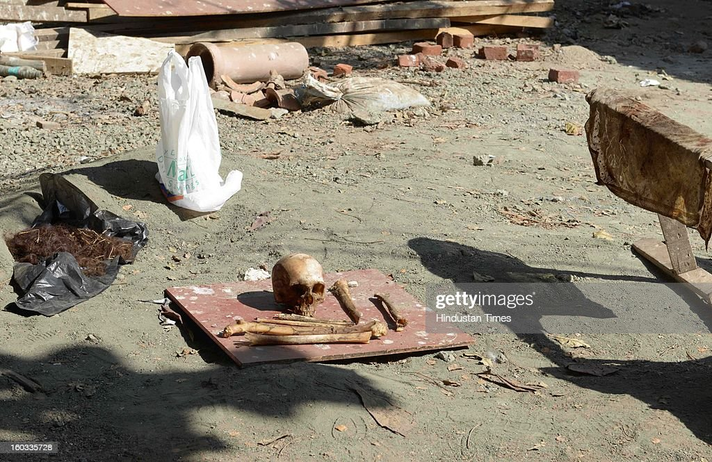 Skull and other parts of human skeleton that was found behind DPS school by geologist Michael Johan Oates on January 29, 2013 in Mumbai, India. The remains were believed to be of Sandhya Singh who is eldest sister of music composers Jatin and Lalit and singers Sulakshana and Vijeta Pandit. She went missing 49 days ago. Police official are waiting for forensic reports for confirmation.