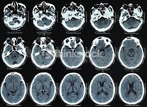 Cráneo La Ct Imágenes Foto de stock   Thinkstock