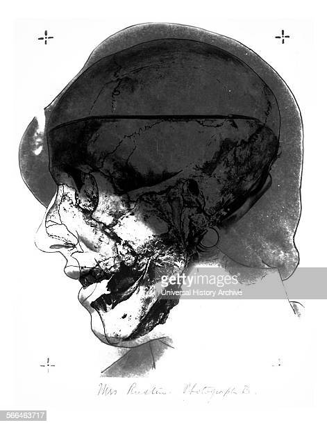 Skull no 2 photograph B 1935 Investigators photographed the Skull No 2 in the same orientation as an existing photograph of Mrs Ruxton Then they laid...