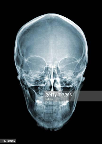 Cráneo xray