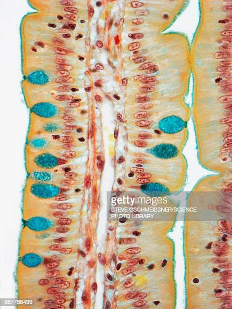 Small intestine, LM