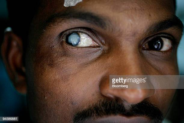 A small piece of tape over the eye of a villager indicates which eye is to be operated on in this case an advanced cataract in Palghar India on...