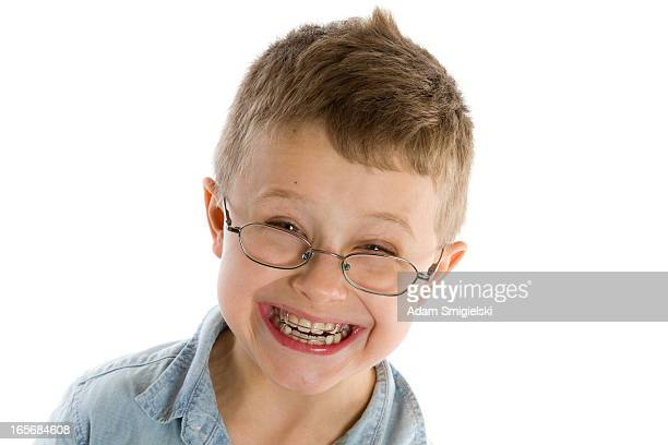 smiling boy with braces isolated on white
