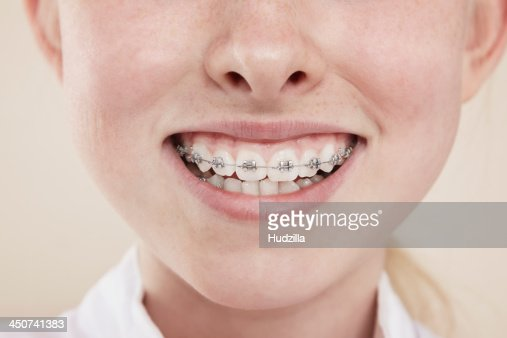 A smiling girl with braces on her teeth, close-up of mouth
