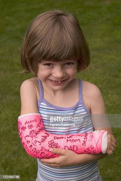 Smiling Little Girl With Cast on Her Arm