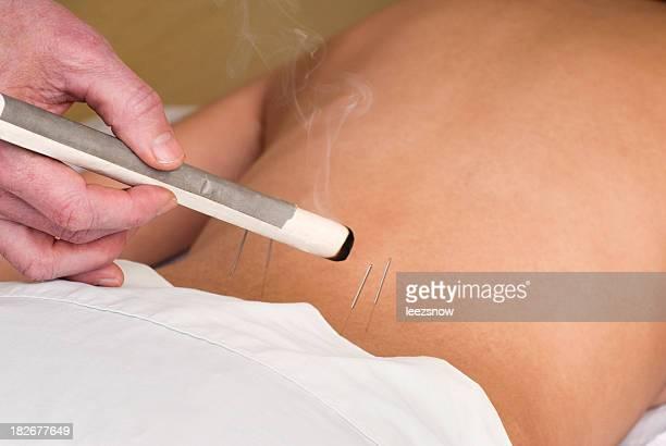喫煙の鍼灸スティックシリーズ