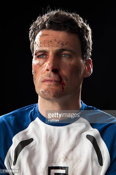 A soccer player with a bloody nose