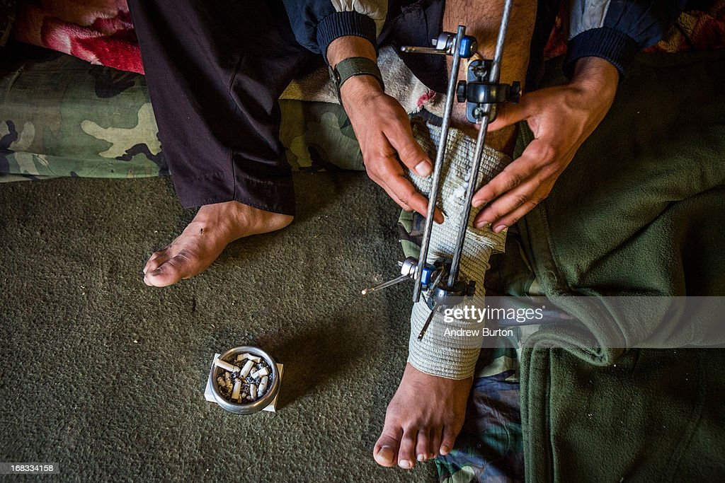 A soldier from the Afghan National Army's 6th Kandak (battalion), 3rd company re-wraps bandages around his leg at Command Outpost Pa'in Kalay on March 31, 2013 in Kandahar Province, Maiwand District, Afghanistan. The soldier stepped on an improvised explosive device (IED) months before; his leg was injured but he is able to walk on it with the help of crutches. The United States military and its allies are in the midst of training and transitioning power to the Afghan National Security Forces in order to withdraw from the country by 2014.