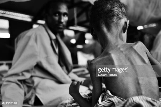 A Somali father watches over his severely malnourished child after fleeing a prolonged drought in Somalia at the Medecins Sans Frontieres hospital in...