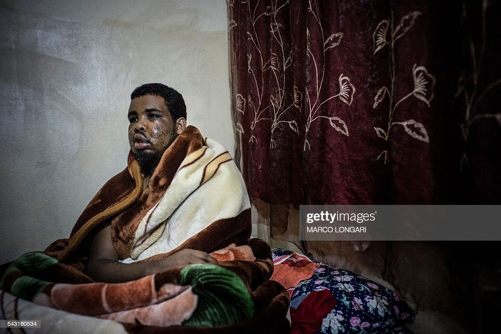 Somali's Ahmad Ibrahim Hashi, 28, recovers on June 26, 2016 at a shelter in Pretoria West after he was attacked in the township of Atterigville during a flare of political unrest that saw several foreign own shops attacked and looted. / AFP / MARCO