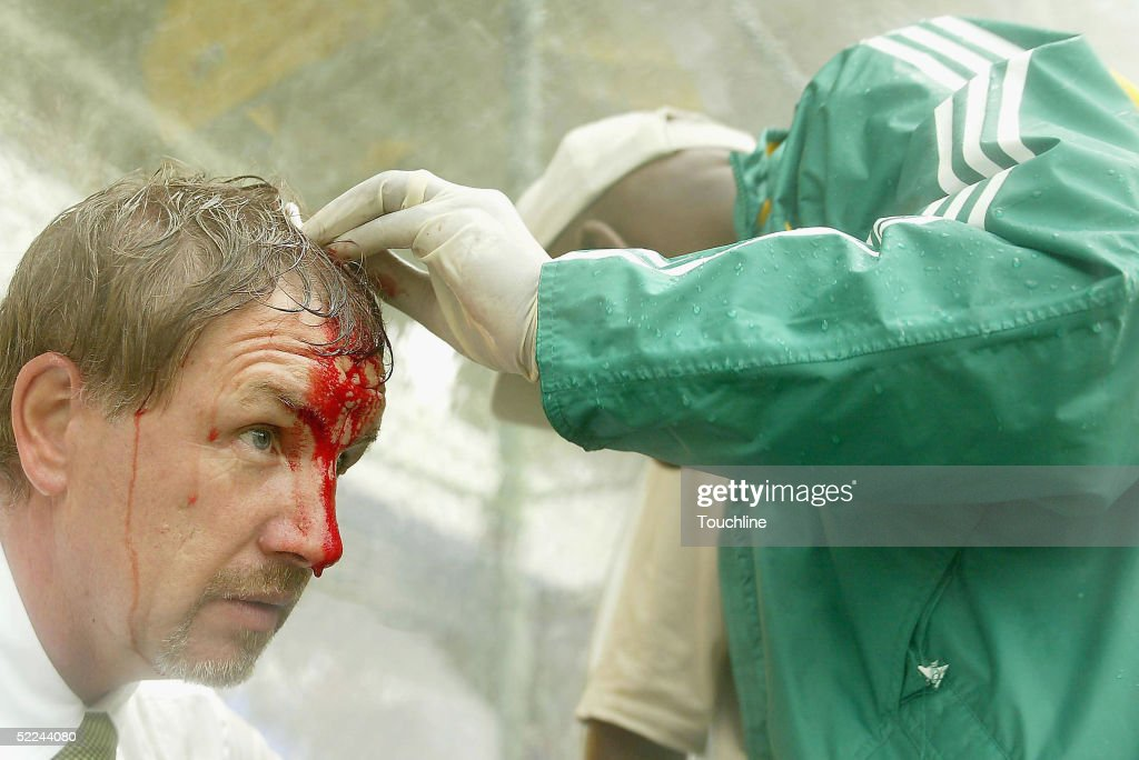 South African coach Stuart Baxter gets treatment on the bench after slipping in the rain and injuring his head his on the bench during the Cosafa...