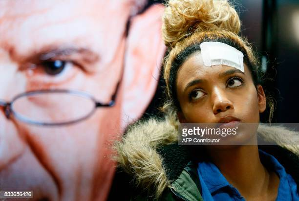 South African model Gabriella Engels allegedly assaulted by Zimbabwe First Lady Grace Mugabe looks on during a press conference at the civil rights...