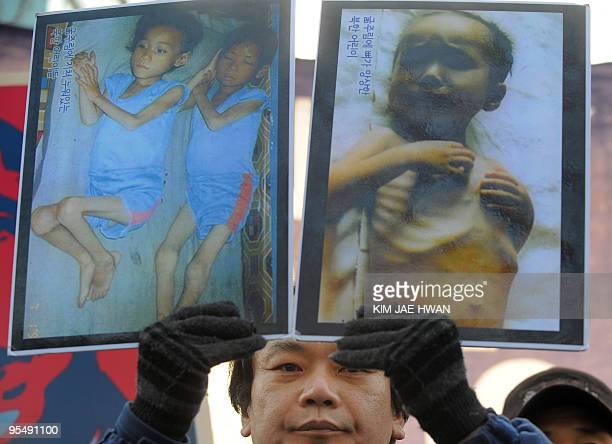 A South Korean activist holds up pictures of North Korean children suffering from malnutrition during a rally in Seoul on December 30 2009 to demand...