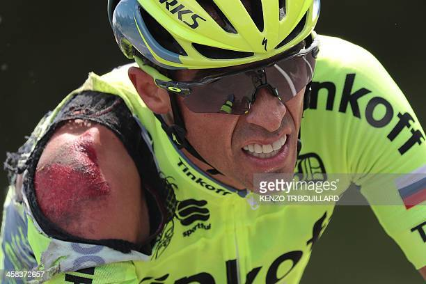 Spain's Alberto Contador injured after a crash rides during the 188 km first stage of the 103rd edition of the Tour de France cycling race on July 2...
