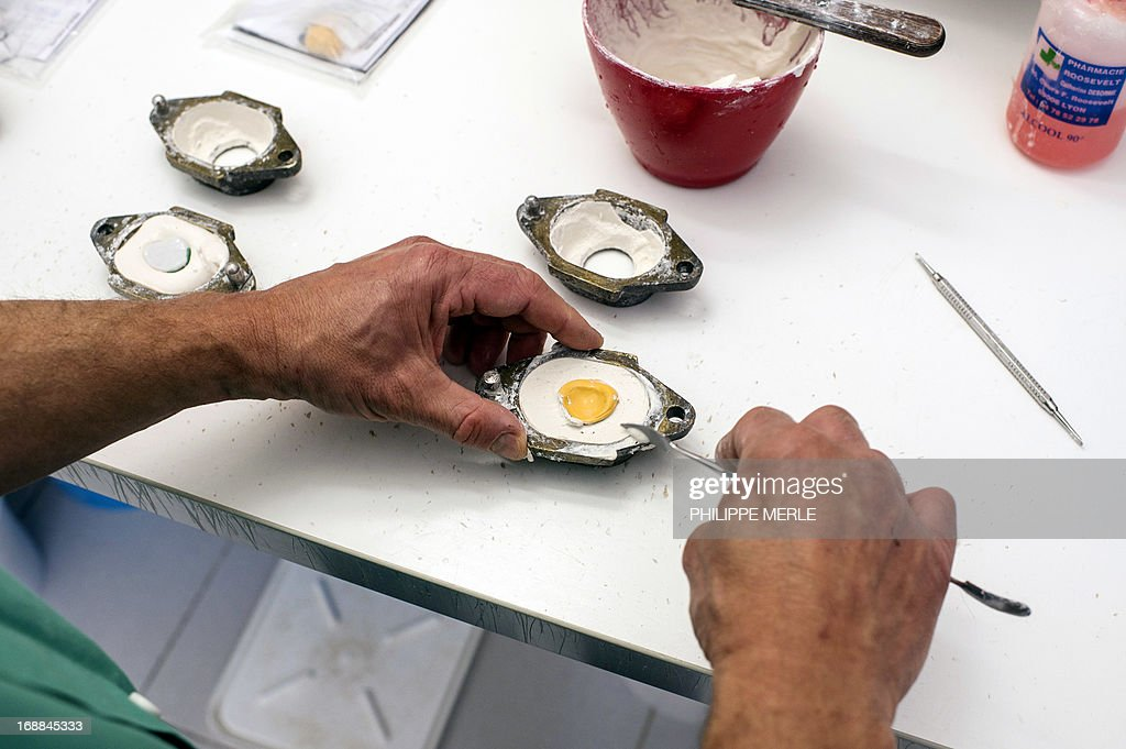 A specialist holds the fresh silicone mold of a patient's eye before heating it in an oven to harden it, on May 13, 2013 in Lyon. Tens of thousands of French people are equipped with an ocular prosthesis, which have come to replace ancient glass eye. The prothesises are made with exact measurements in a few laboratories, including this one in Lyon, where the meticulous painting of the iris is assigned to an artist. AFP PHOTO / PHILIPPE MERLE