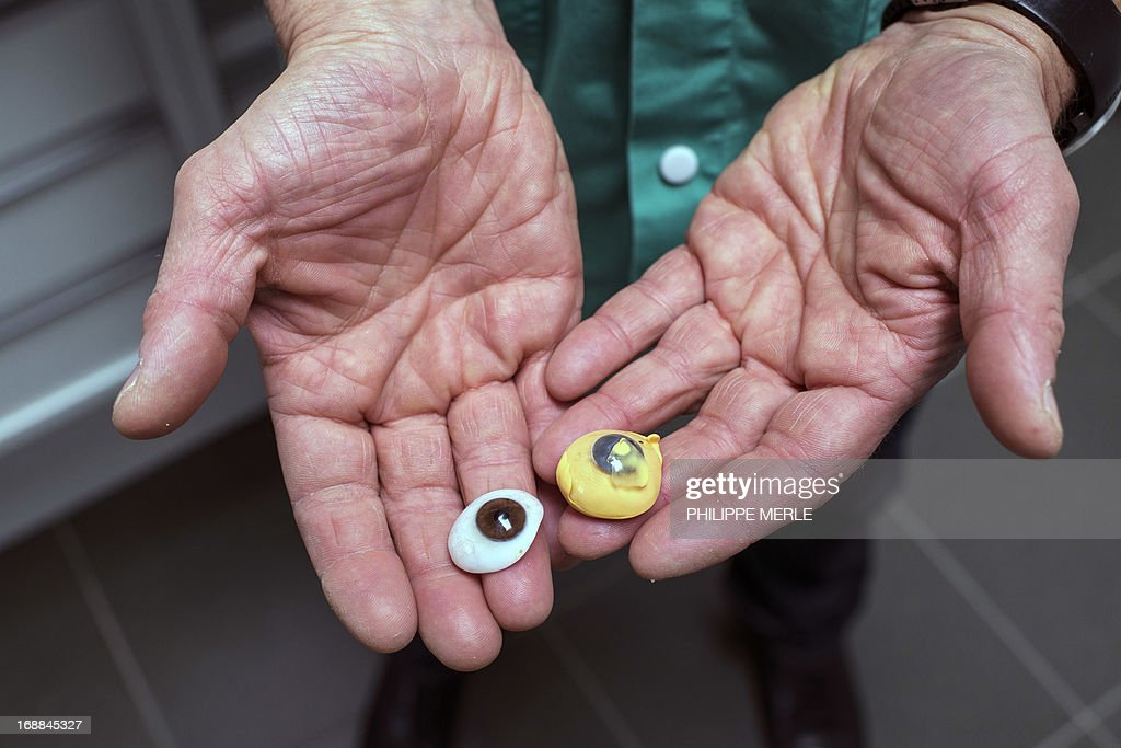 A specialist holds the silicone mold of a patient's eye (R) side by side with a new prothesis, on May 13, 2013 in Lyon. Tens of thousands of French people are equipped with an ocular prosthesis, which have come to replace ancient glass eye. The prothesises are made with exact measurements in a few laboratories, including this one in Lyon, where the meticulous painting of the iris is assigned to an artist. AFP PHOTO / PHILIPPE MERLE