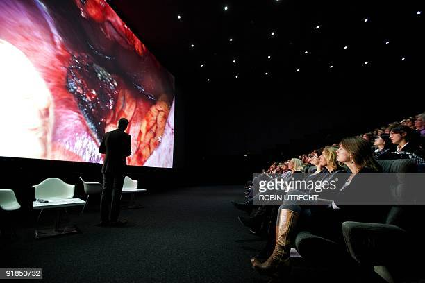 Spectators watch live liver surgery to remove a tumor at the Pathe cinema in Rotterdam on October 13 2009 The surgery was filmed by a video...
