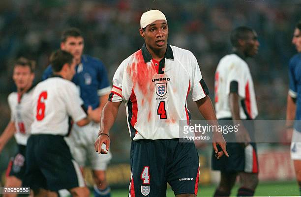 11th October 1997 World Cup Qualifier in Rome Italy 0 v England 0 England captain Paul Ince bloodstained and bandaged after a firsthalf incident Paul...