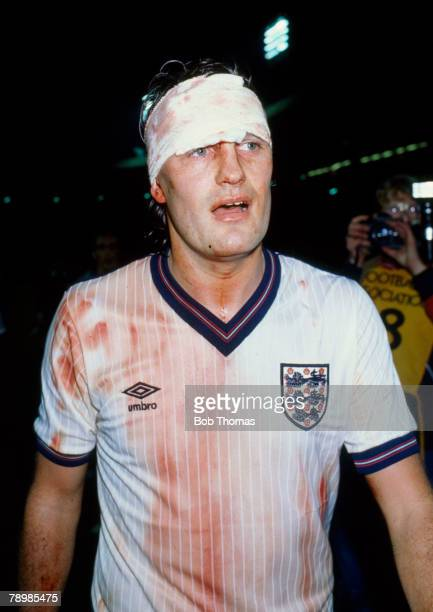 12th November 1986 European Championship Qualifier at Wembley IEngland 2 v Yugoslavia 0 A bandaged and bloodstained Glenn Hoddle leaves the field...