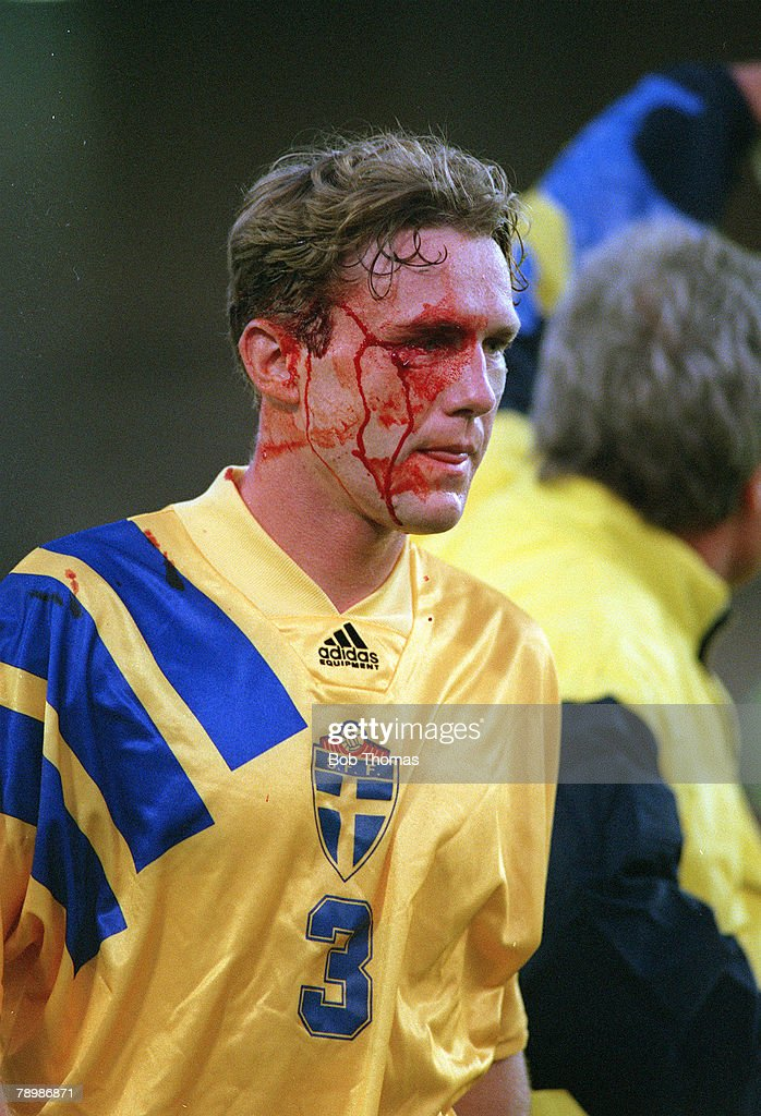 1992, European Championships in Stockholm, Semi-Final, Sweden 2, v Germany 3, Sweden's Jan Eriksson covered in blood