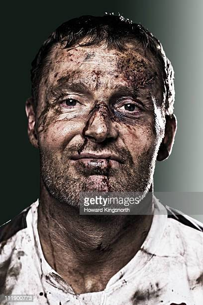 sportsman with bruised and bloodied face looking t