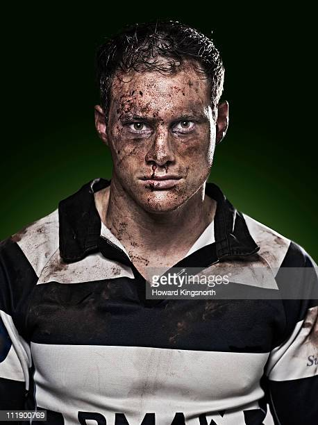 sportsman with bruised and bloodied face