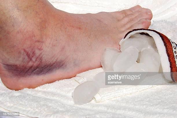 Sprained Knöchel