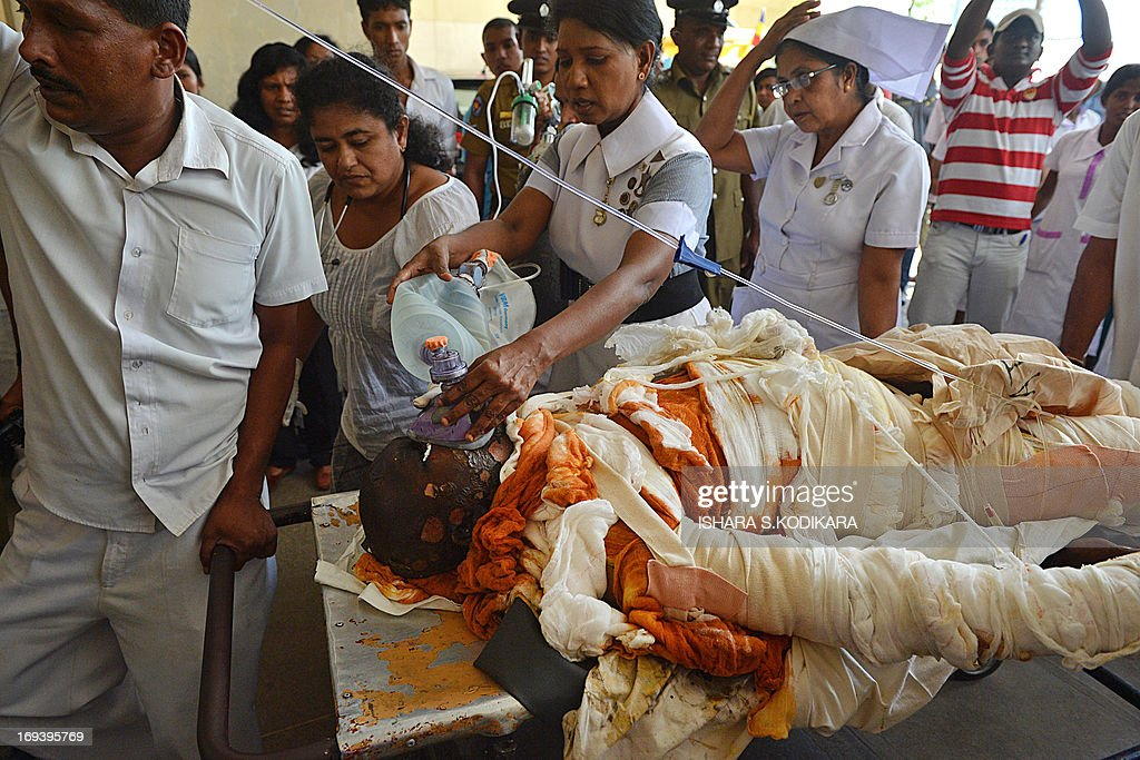 Sri Lankan Buddhist monk Bowatte Indaratane, seen covered in bandages after he self-immolated in Kandy, is brought to the country's main hospital in Colombo on May 24, 2013. Indaratane self-immolated in the central town of Kandy to protest against the slaughter of cattle in the country, reports said. AFP PHOTO/Ishara S. KODIKARA