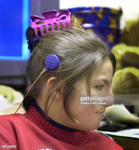 Staff photo by Gregory Rec Thursday June 13 2002 The transmitter part of the cochlear attaches magnetically to an implant just above Erika's ear A...
