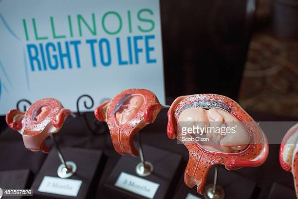 Stages of a fetus are displayed at the Illinois Right To Life a table while Republican presidential hopeful and former Arkansas Governor Mike...