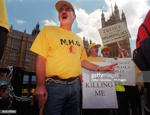 Stan Cockburn from Liverpool joins other haemophiliacs who have chained themselves outside Westminister in protest at recieving blood infested with...