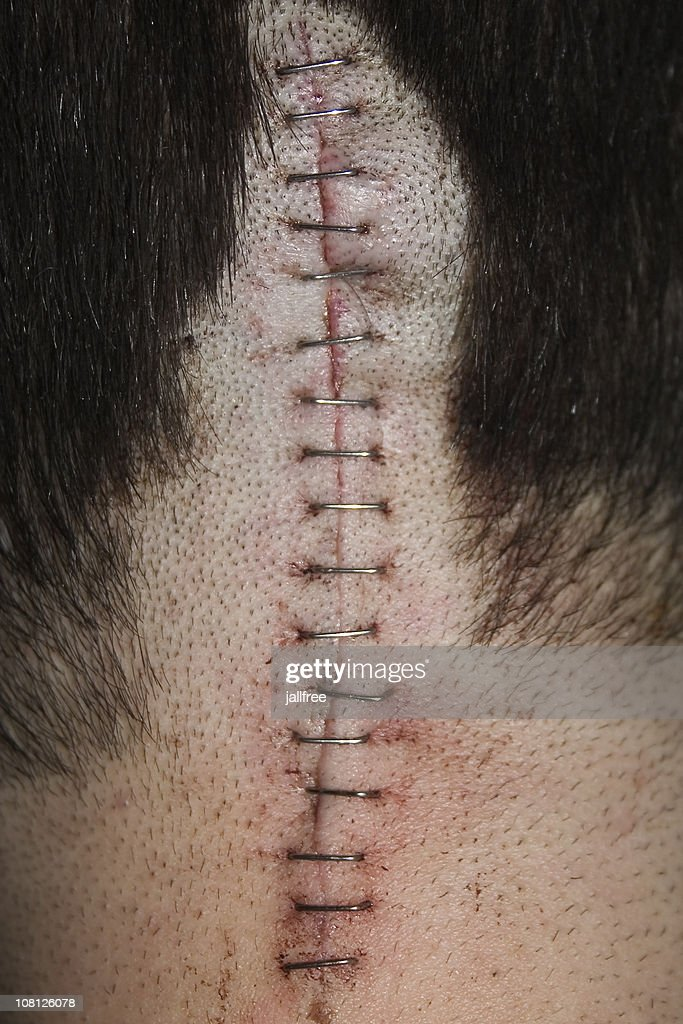 Staples Along Scar on Back of Head : Stock Photo