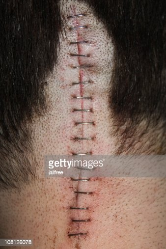 Staples on scar on back of head after operation : Stock Photo