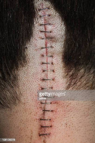 Staples on scar on back of head after operation