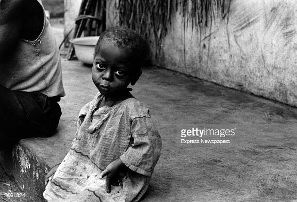 A starving Biafran child during the famine resulting from the Biafran War